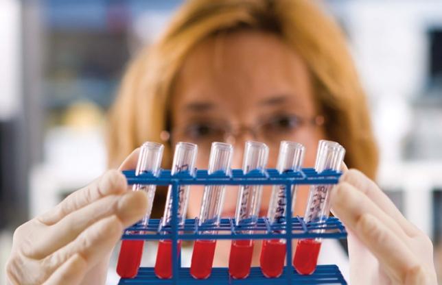 hepatita-c-laborator